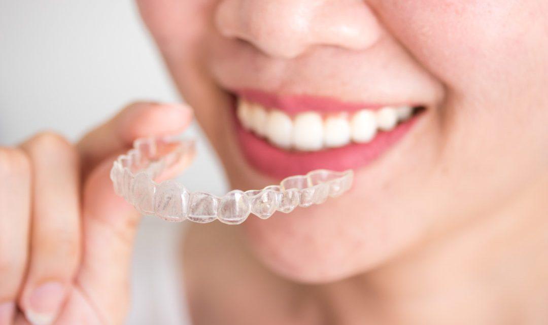 Porcelain veneers is best for aesthetic dental treatment